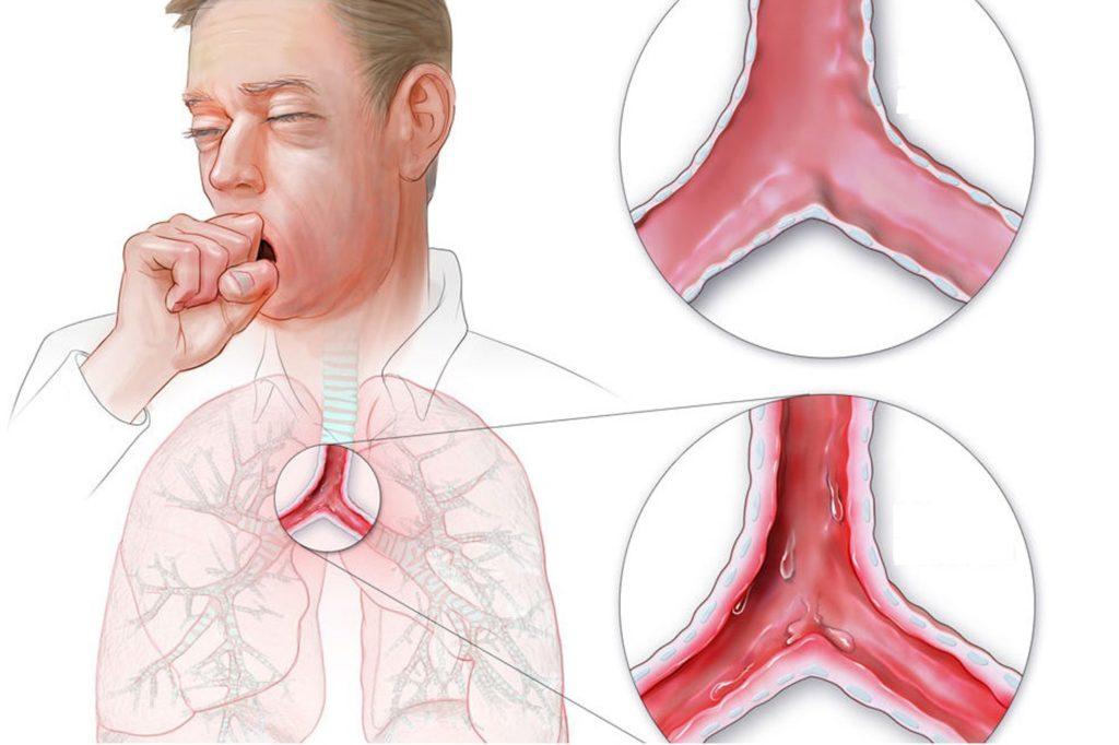 Причины и симптомы хронического трахеита
