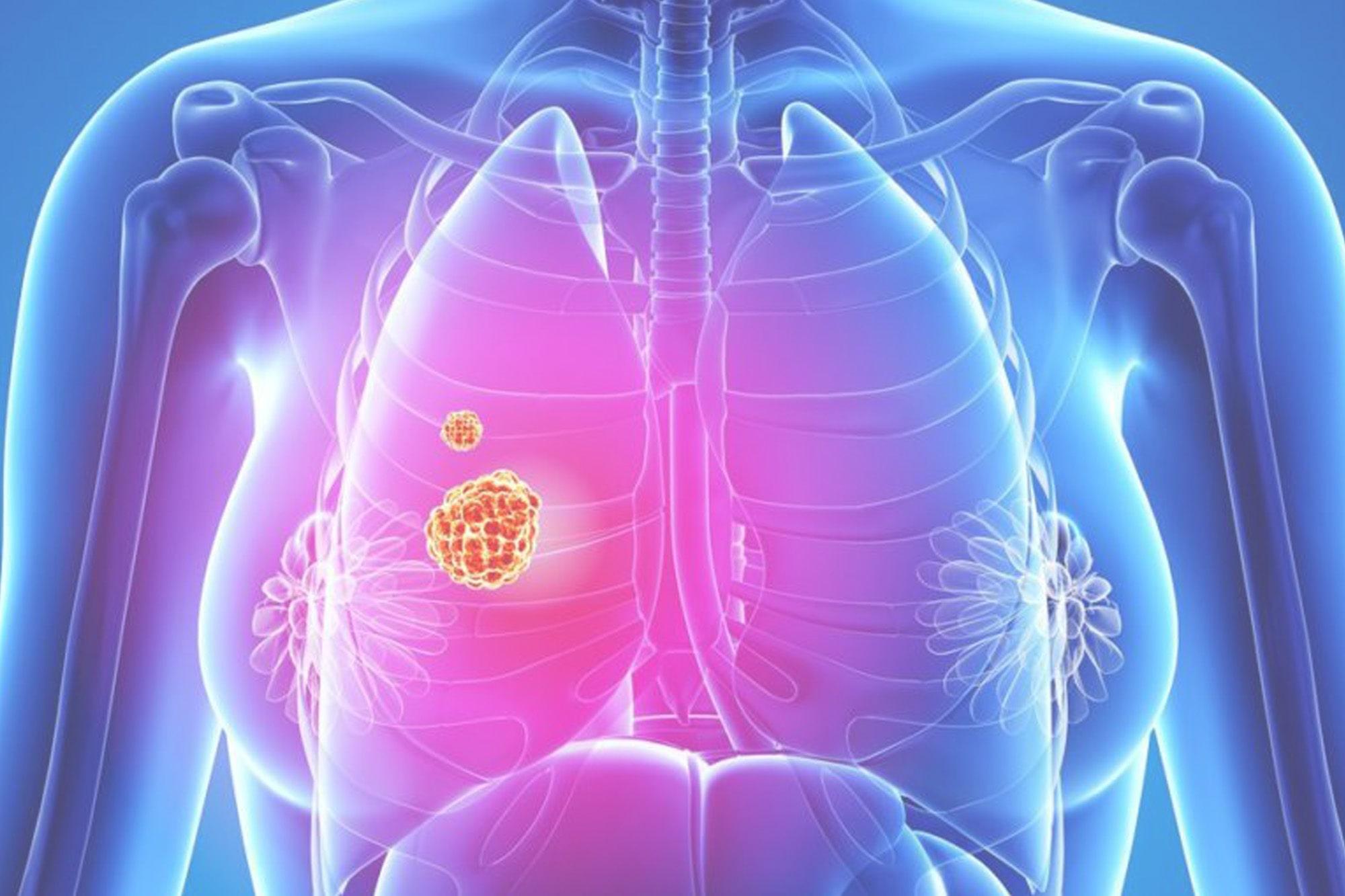 Аденокарцинома легкого - причины и лечение