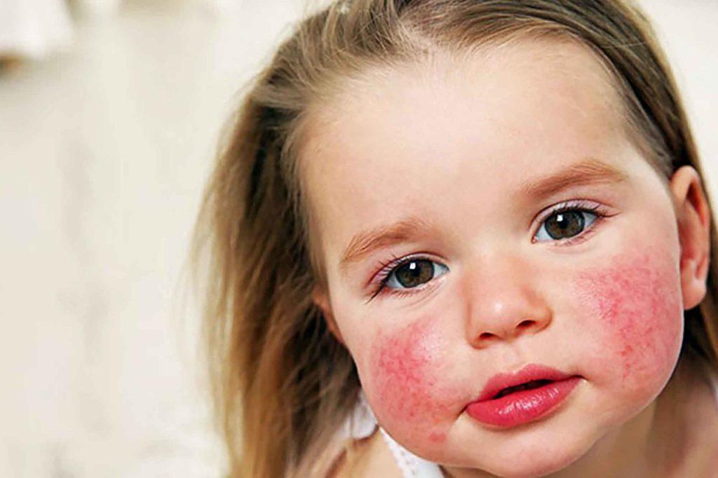 Развитие аллергии у детей