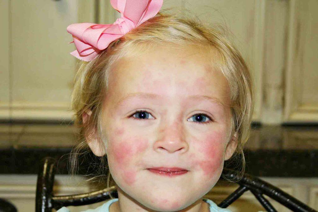 Аллергическое проявление у детей