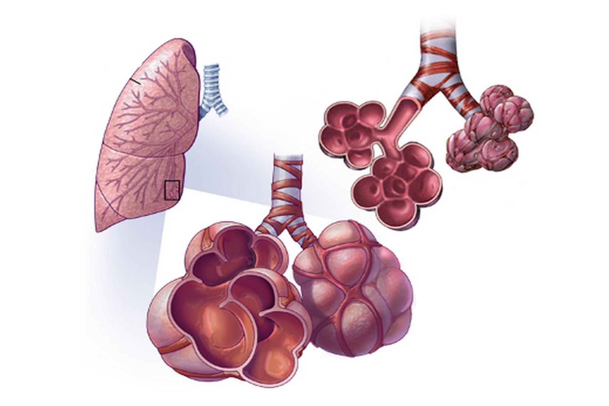 Аллергический альвеолит - симптомы