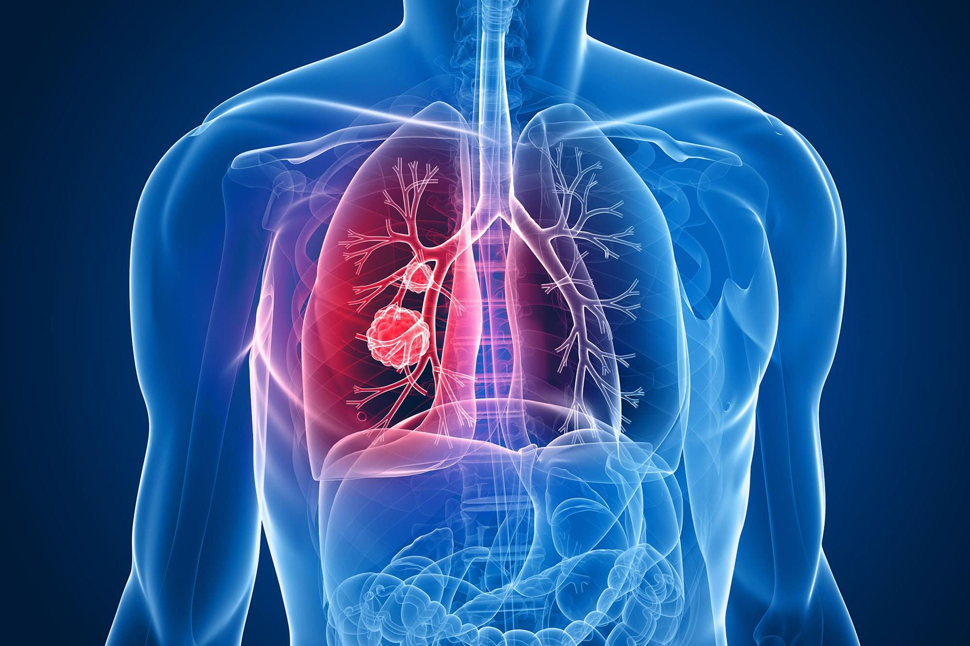 Бактериальный бронхит - лечение, рентген