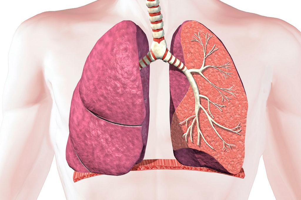 Что такое альвеолярный микролитиаз