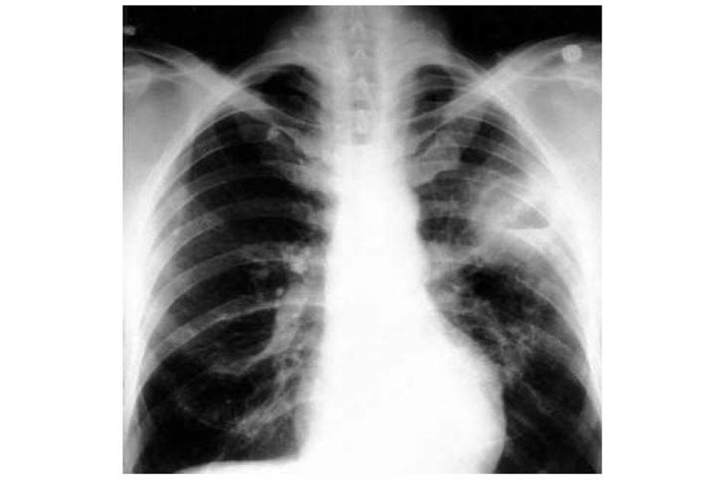 Методы лечения абсцедивирующей пневмонии