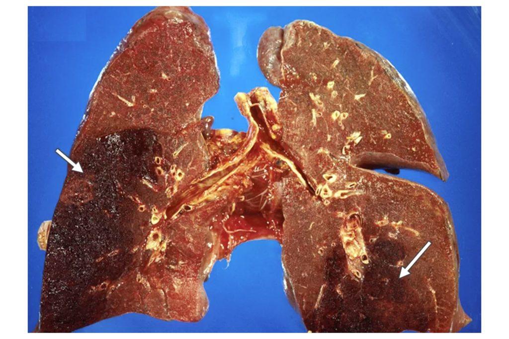 Лечение и симптомы амебиаза легких