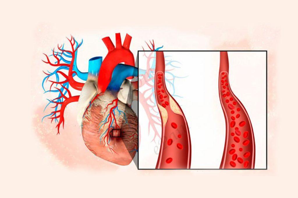 Как проявляется аневризма легочной артерии
