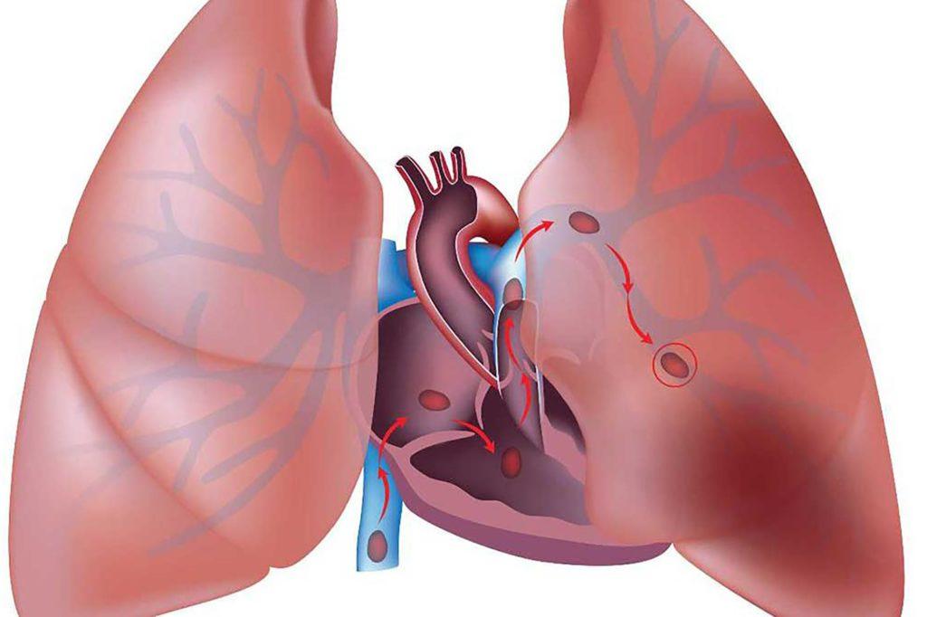 Артериовенозный аневризм легких патогенез