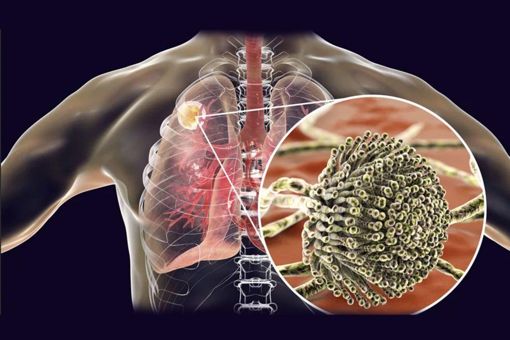 Симптомы и причины аспергилломы легкого