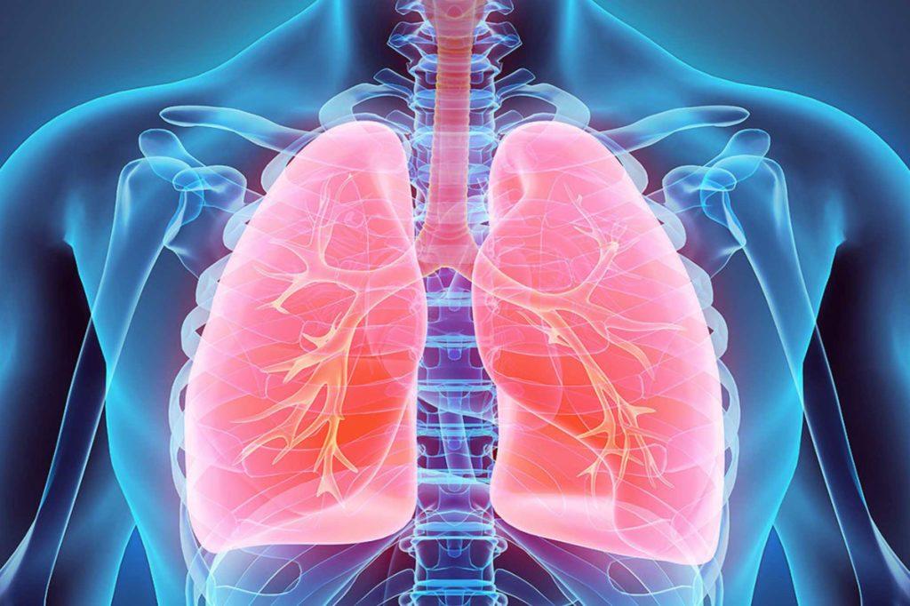 Как развивается атипичная пневмония