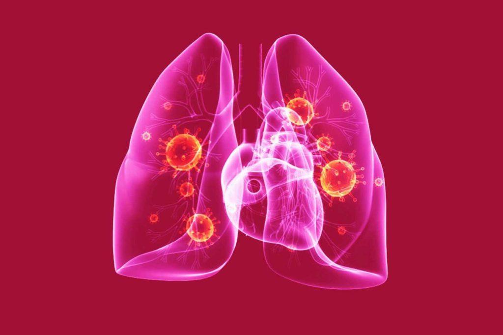 Развитие атипичной пневмонии