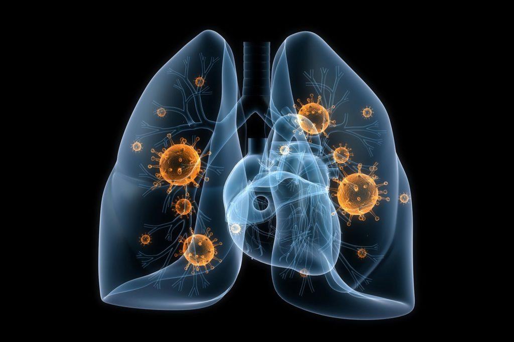 Бактериальная пневмония - лечение