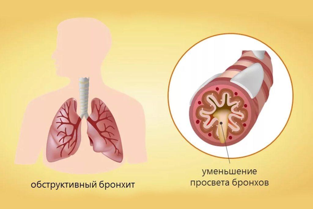 Что вызывает заболевание