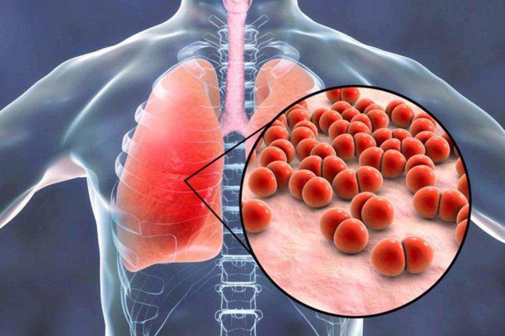 Диагностика бензиновой пневмонии