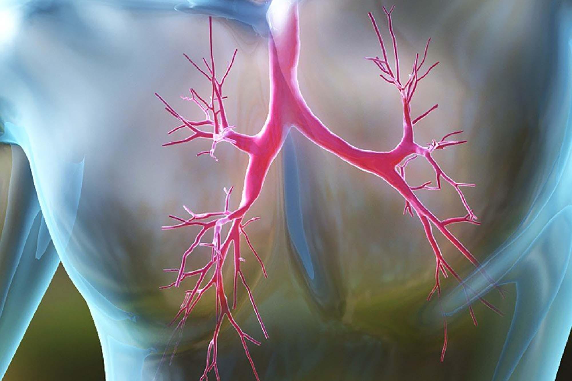 Разница между бронхитом и пневмонией