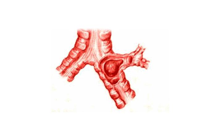 Смптомы бронхостеноза
