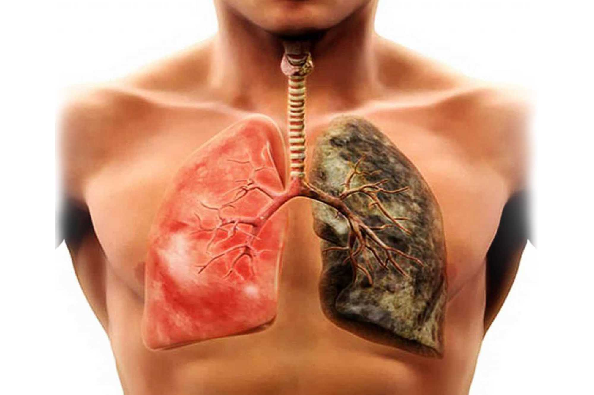 Гемосидероз легких - причины и лечение