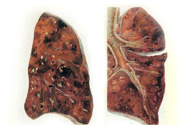 Особенности геморрагической пневмонии
