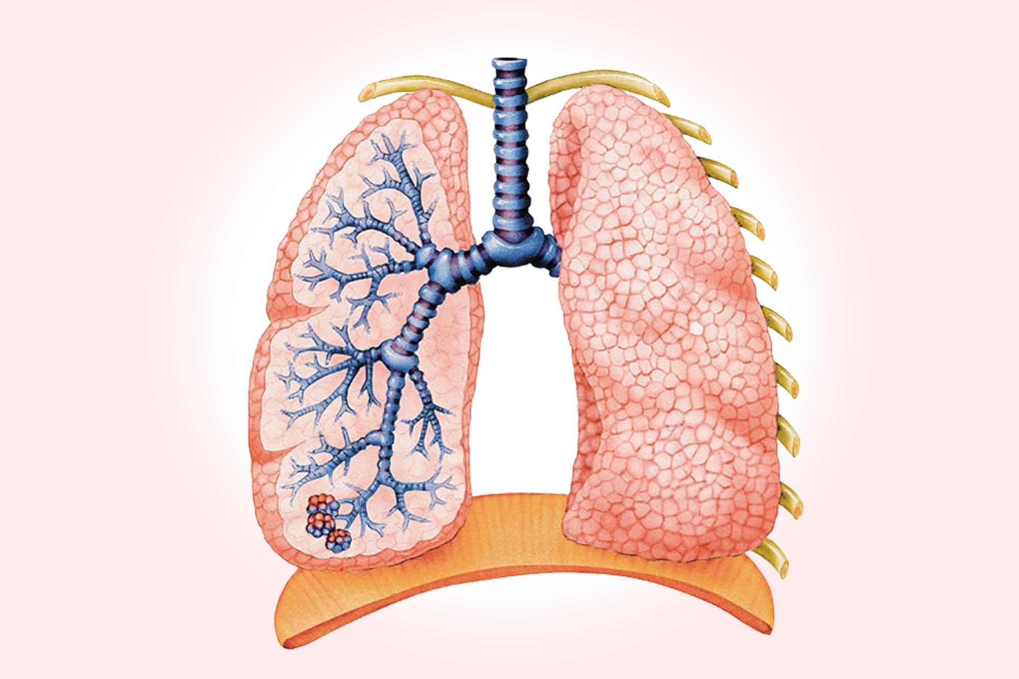 Гипоплазия легких - особенности, лечение