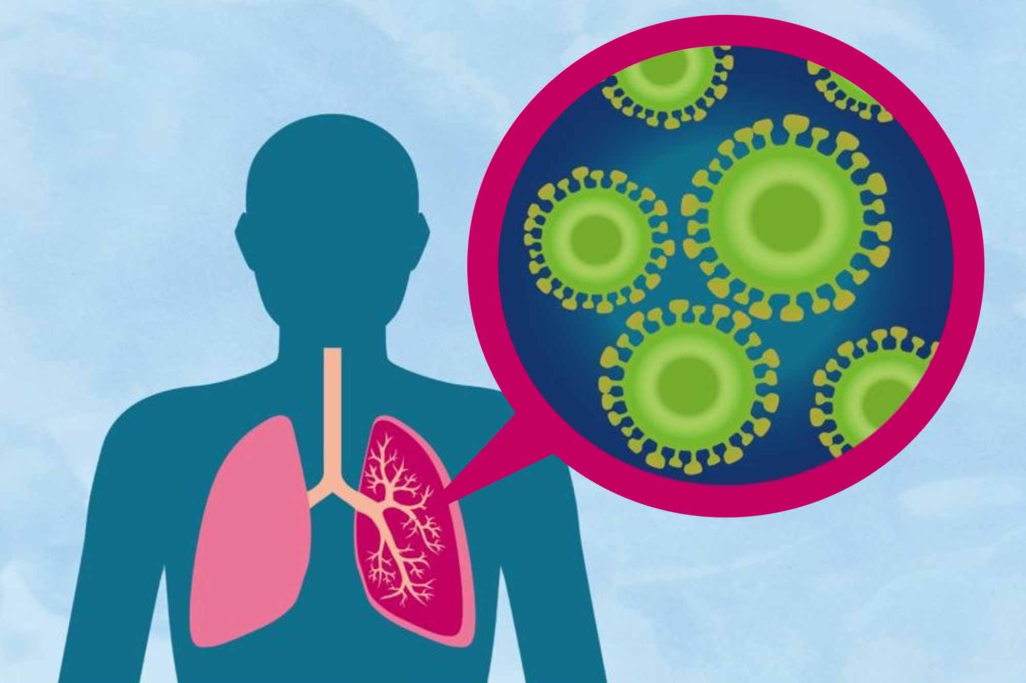 Лечение бессимптомной пневмонии