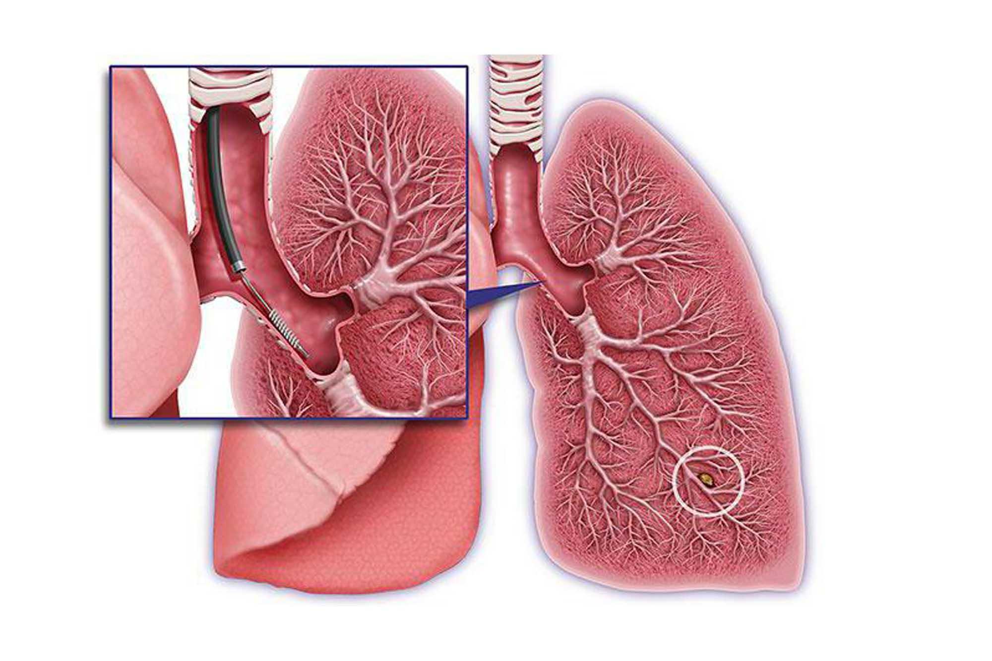 Бронхиолоальвеолярный рак легкого - симптомы и лечение