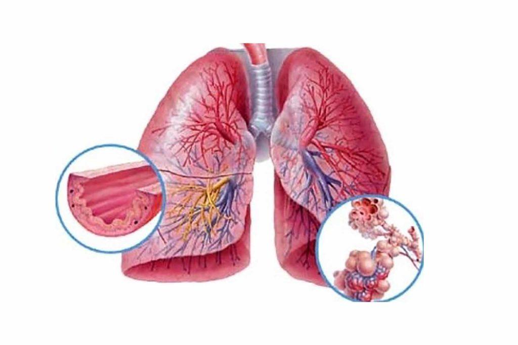 Что такое бронхиальная пневмония