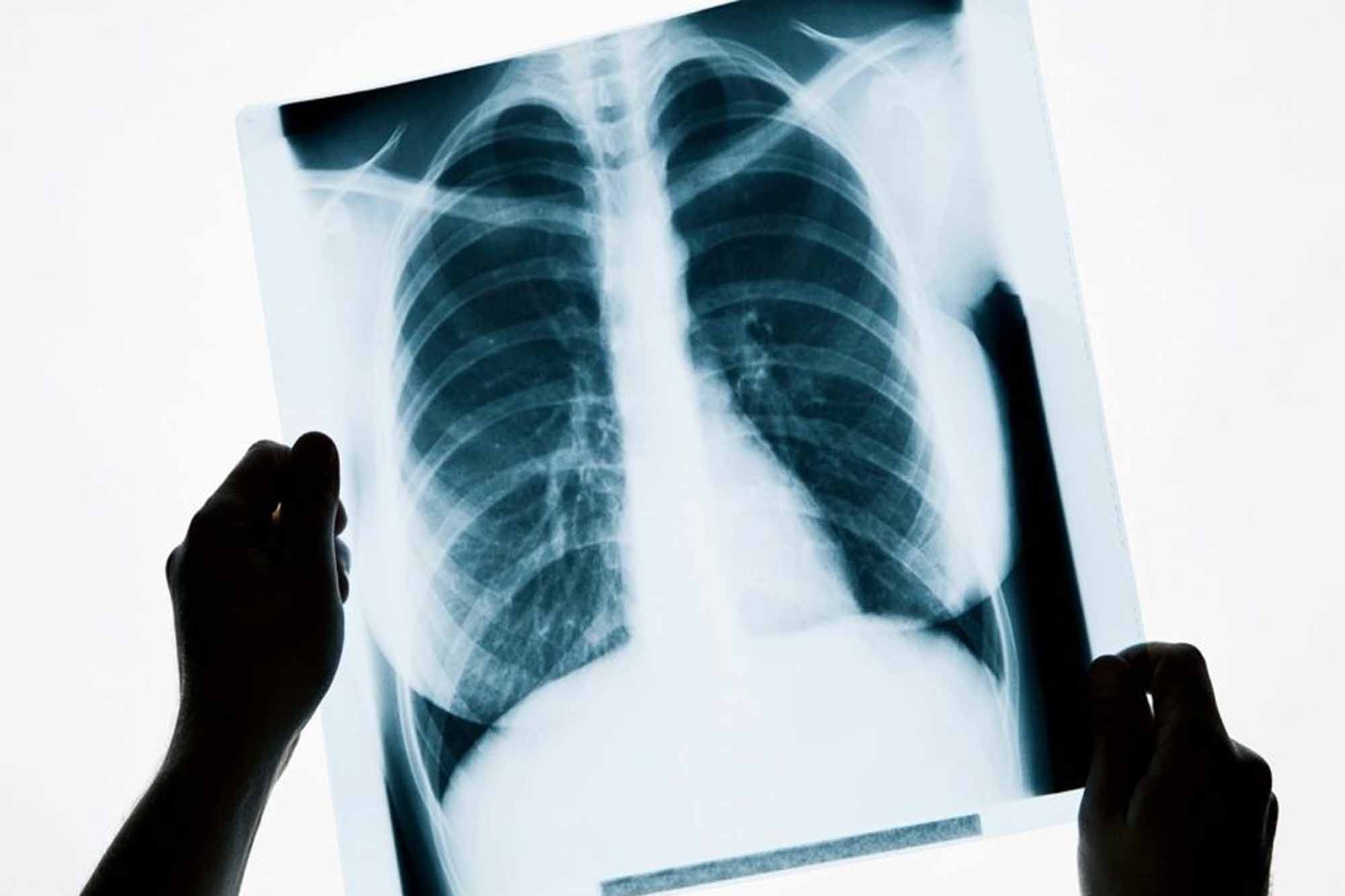 Как и зачем делать рентген при бронхите