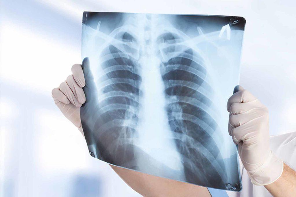 Флюорография и рентген - в чем различия