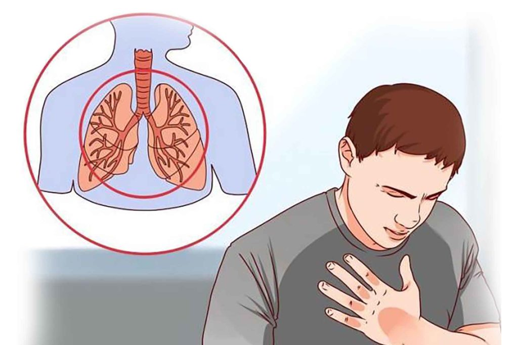 Симптомы необструктивного бронхита