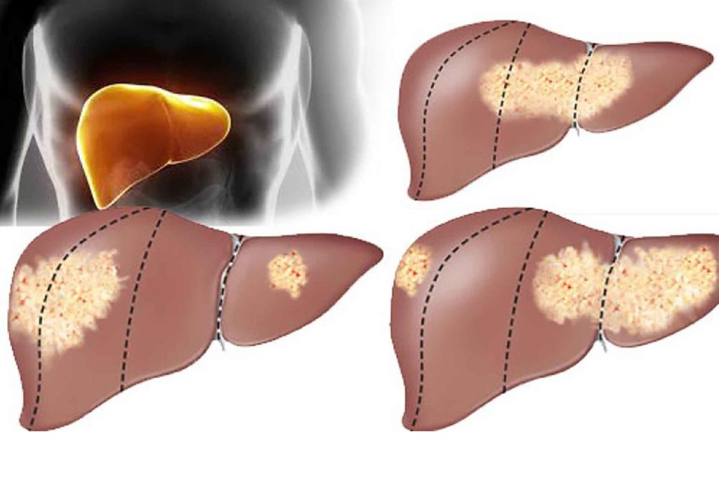 Как развивается раковая опухоль