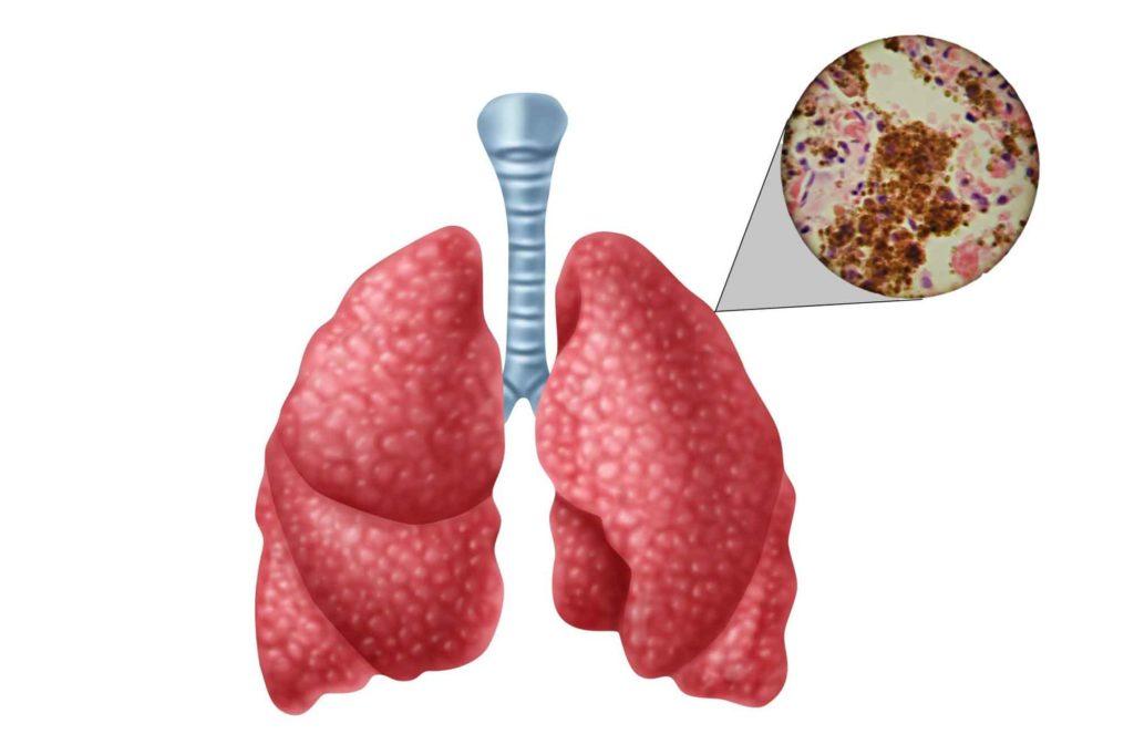 Как развивается туберкулез легких