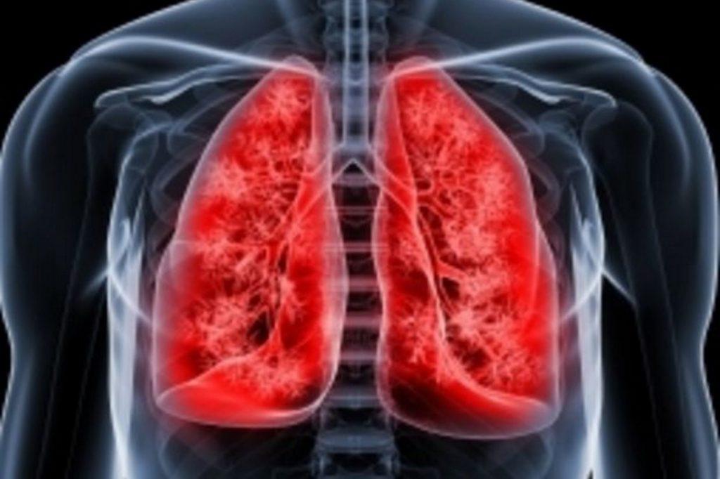Симптомы кавернозной формы туберкулеза легких