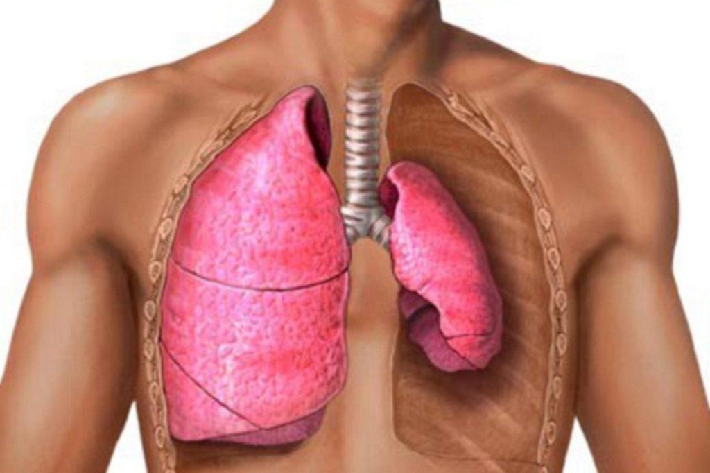 Классификация закрытого пневмоторакса