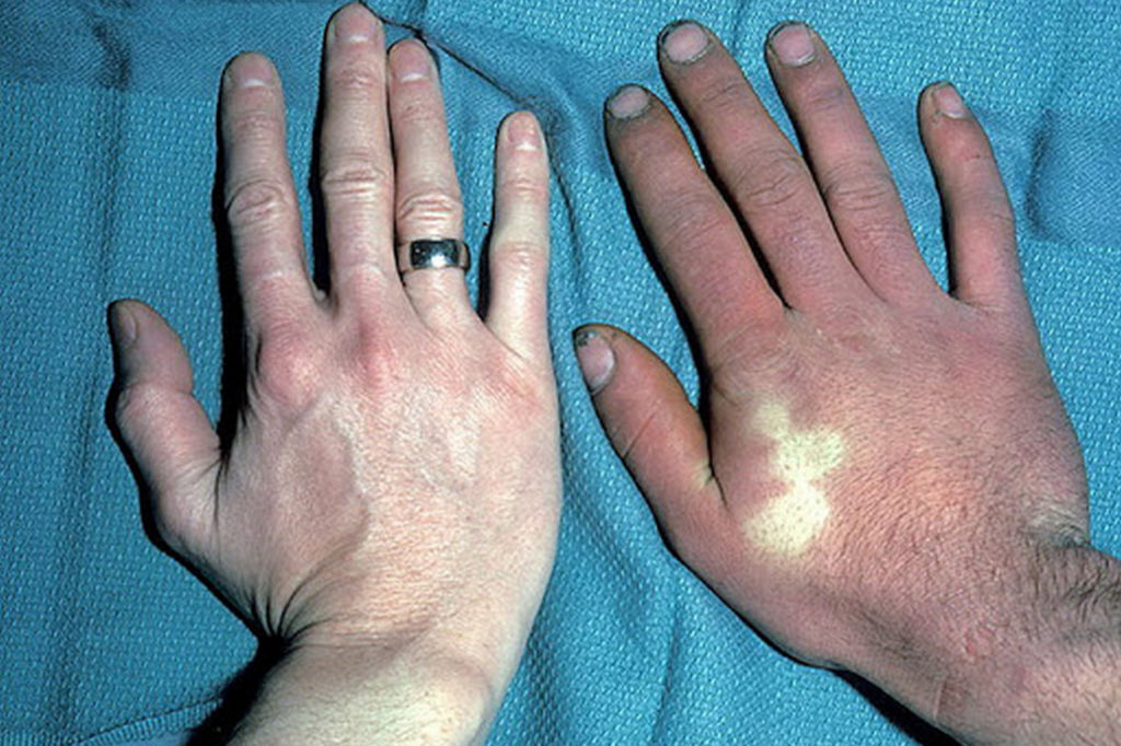 Симптомы акроцианоза