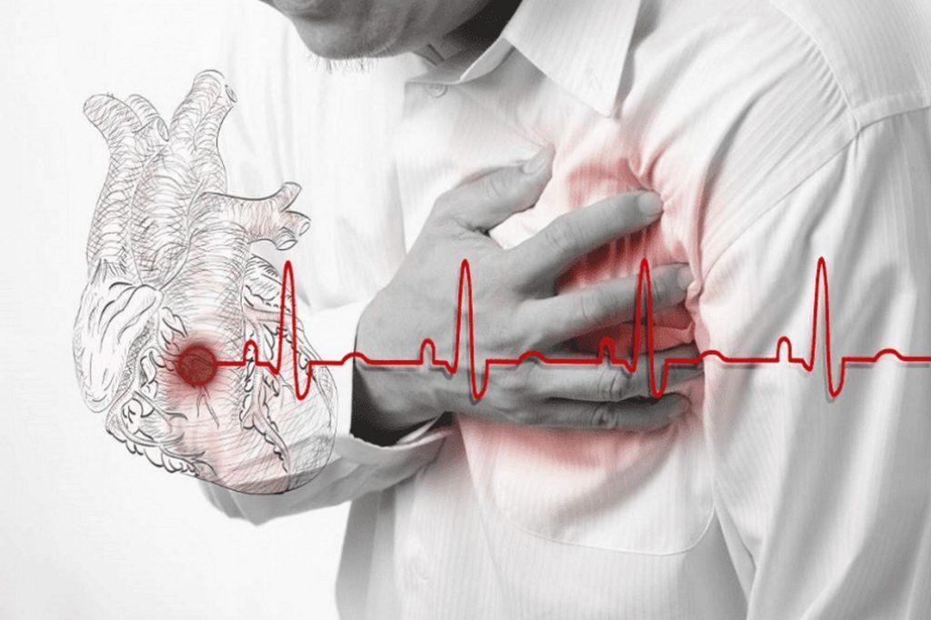 Особенности реабилитации после инфаркта миокарда