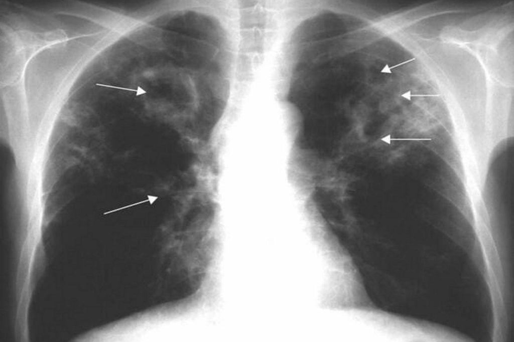 Инфильтративный туберкулез легких: причины и виды