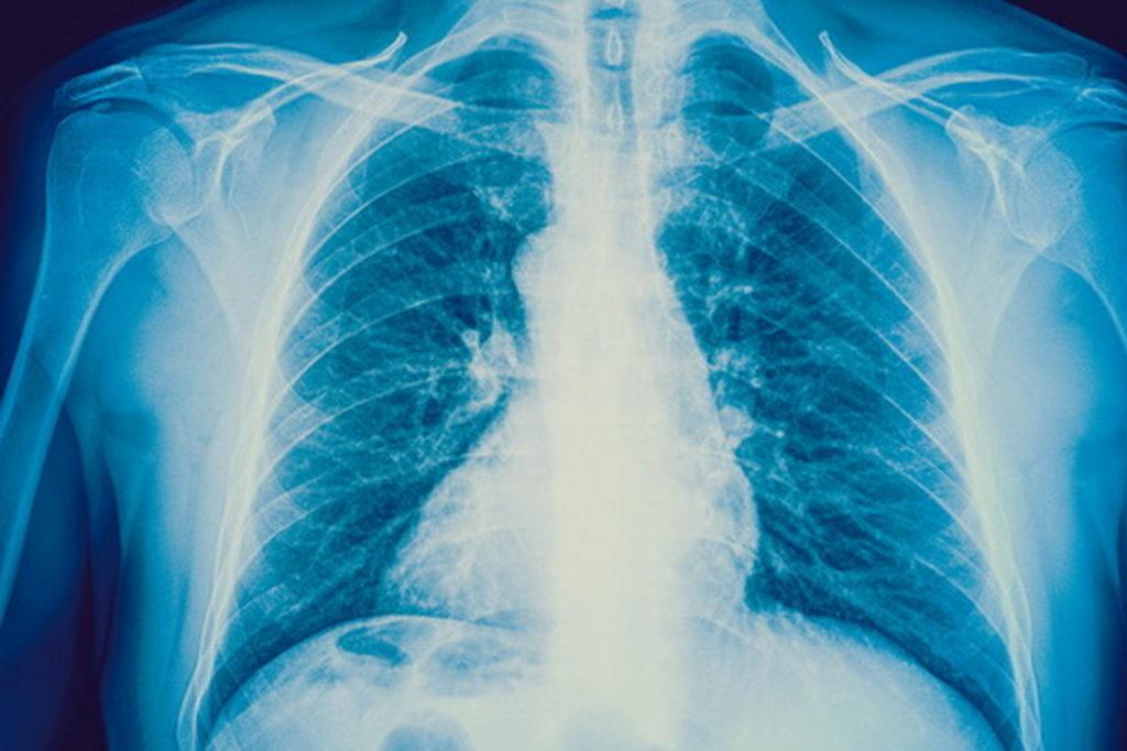 Симптомы интерстициальная пневмонии