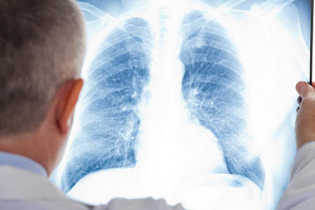 Симптоматика интерстициальных болезней легких