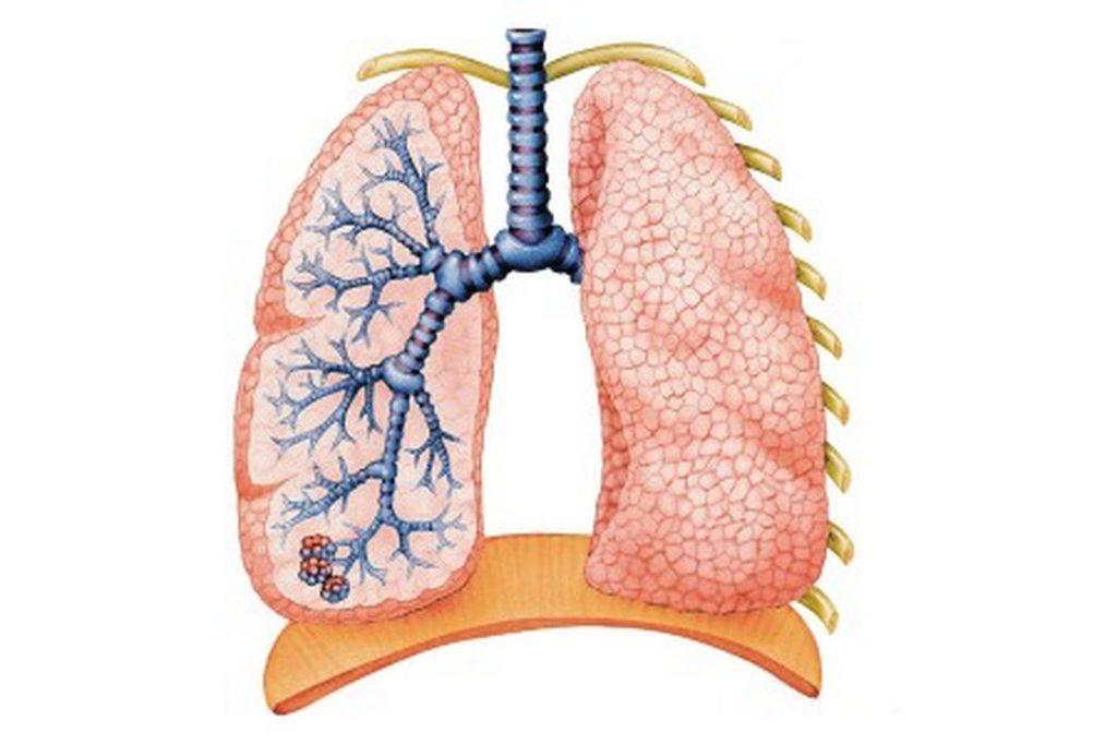 Кандидоз легких: симптомы