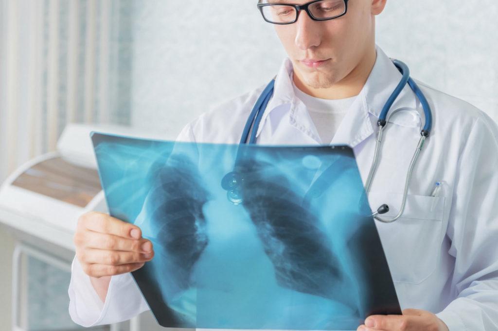 Диагностирование кистозной гипоплазии легких