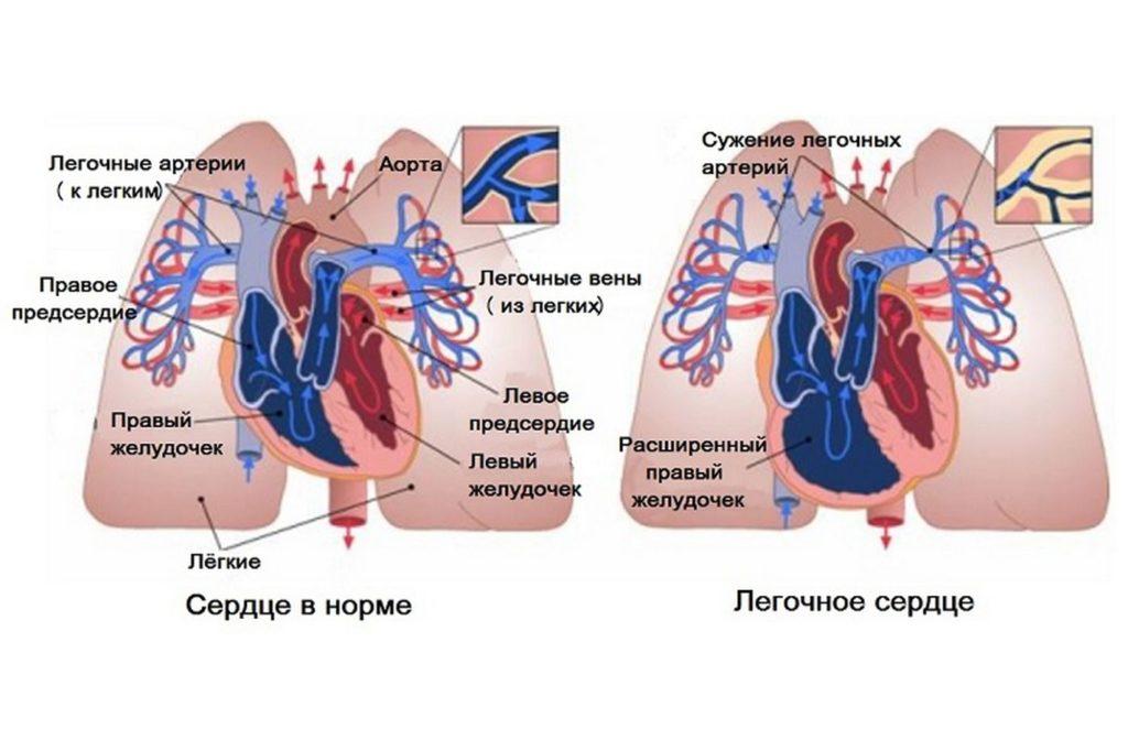 Легочное сердце: что это такое