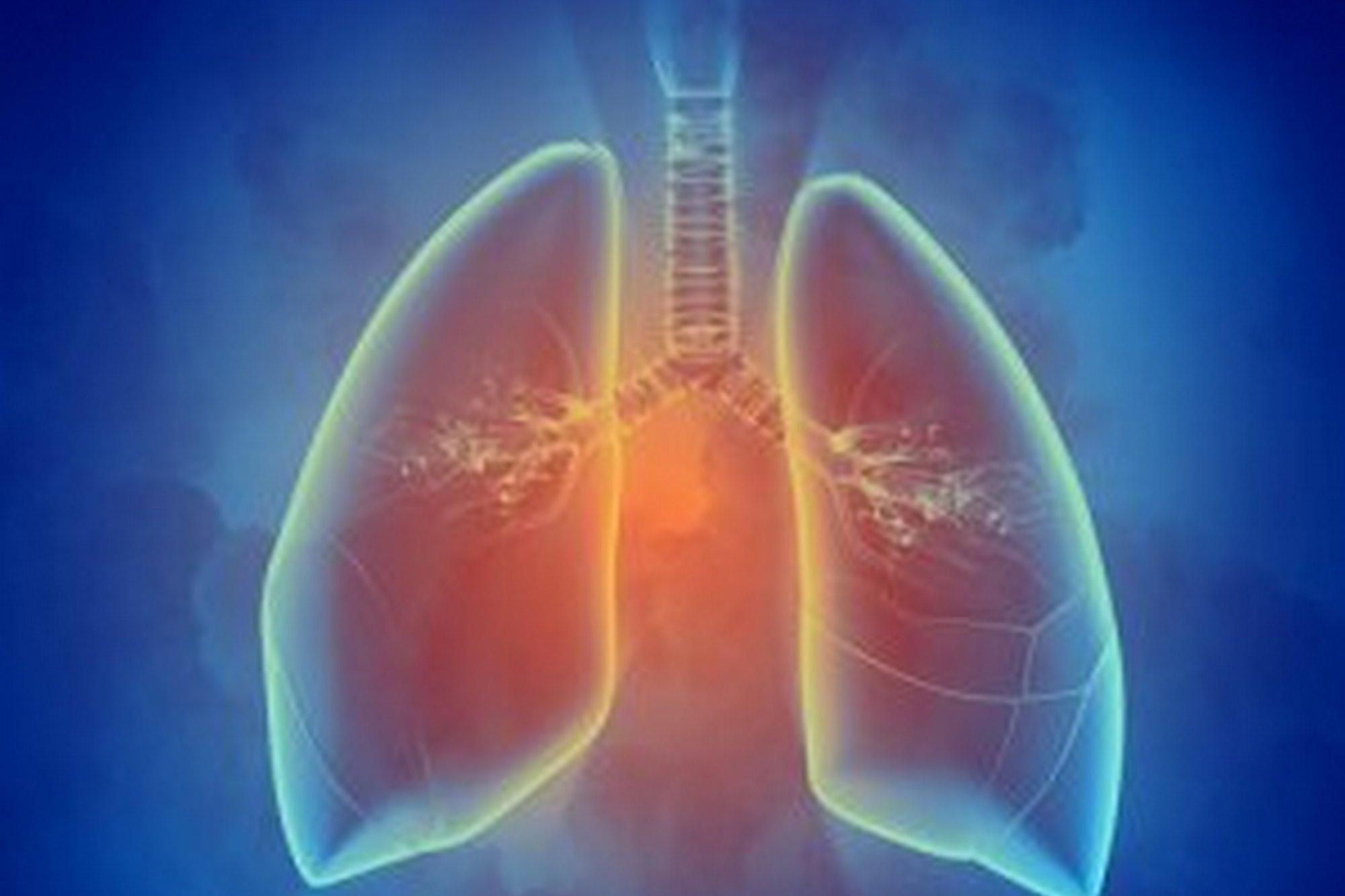 Что такое лимфома легкого и как ее лечить