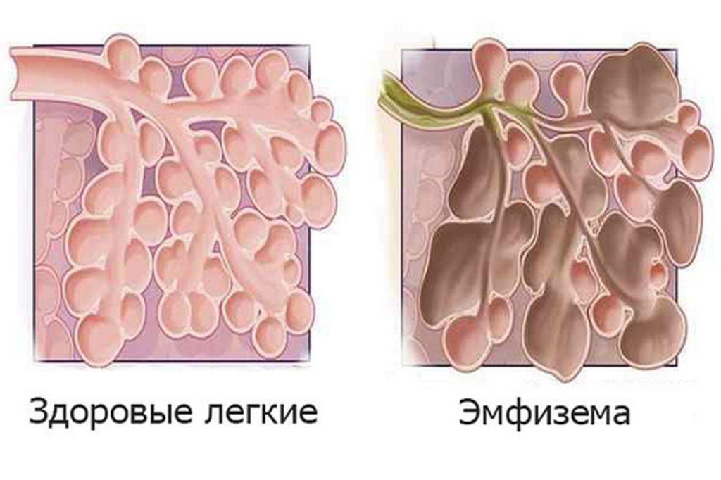 Виды лобарной эмфиземы легких