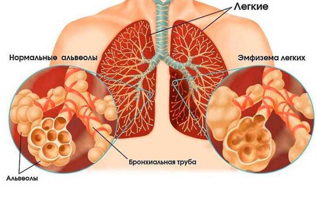 Описание лобарной эмфиземы легких