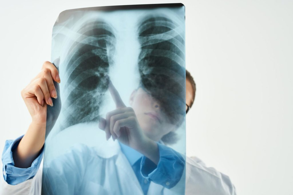 Диагностирование опухолей плевры