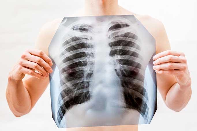Профилактика острой пневмонии