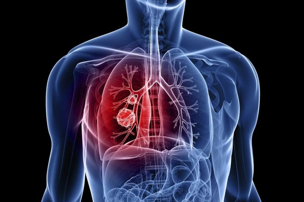 Лечение злокачественных опухолей легких