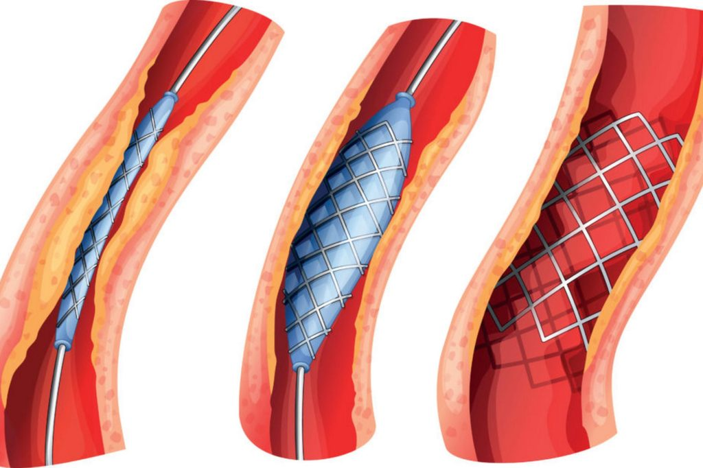 Процесс стентирования сосудов сердца