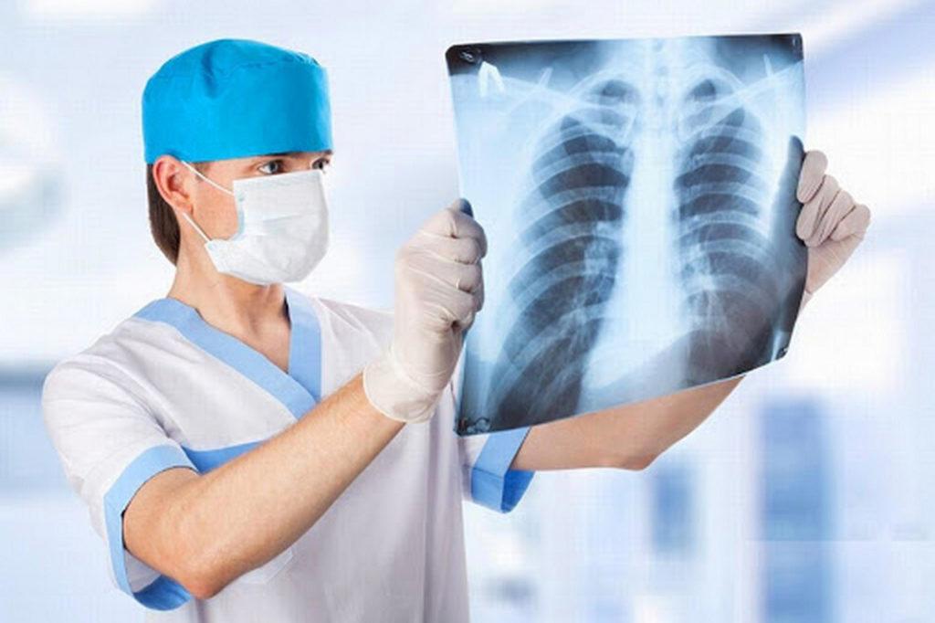 Механизм развития воспаления легких