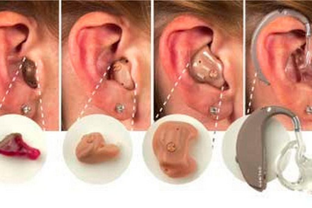 Какие бывают слуховые аппараты