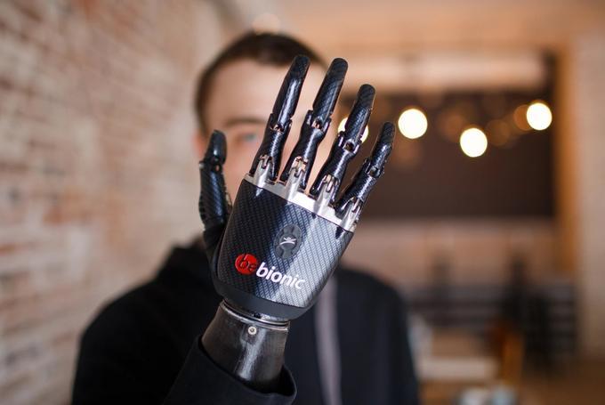 Что такое бионический протез